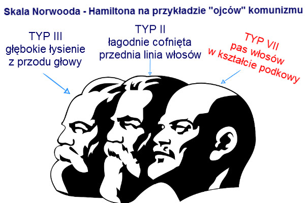 norwood hamilton lysienie androgenowe
