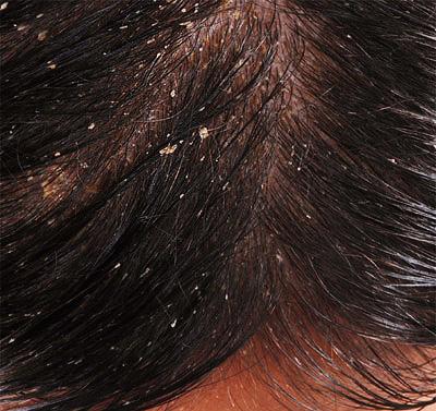 grzybice a wypadanie włosów