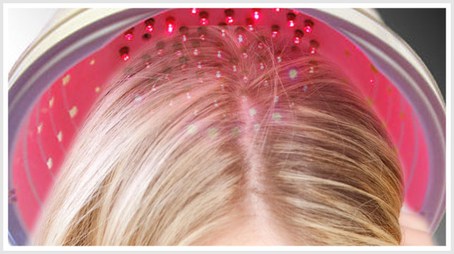 Laser-treatment-for-hair-loss-