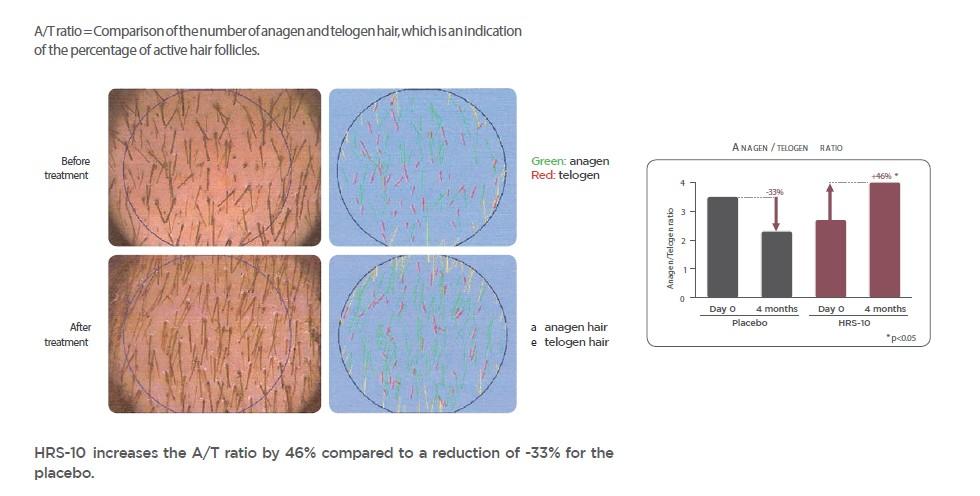 Efekty działania ekstraktu z czerwonej koniczyny i AT3, screen z pdf'a sygnowanego przez brandMD(R) SKIN CARE